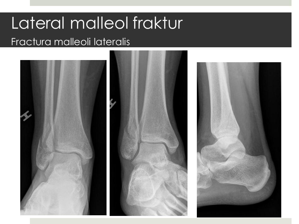 Lateral malleol fraktur Fractura malleoli lateralis