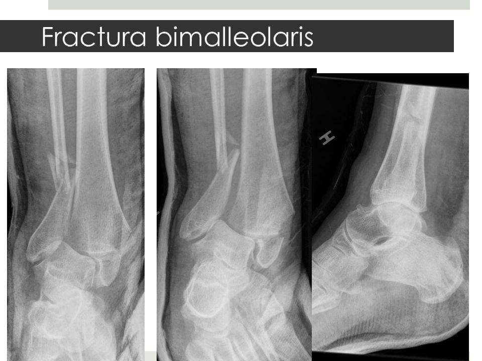 Fractura bimalleolaris
