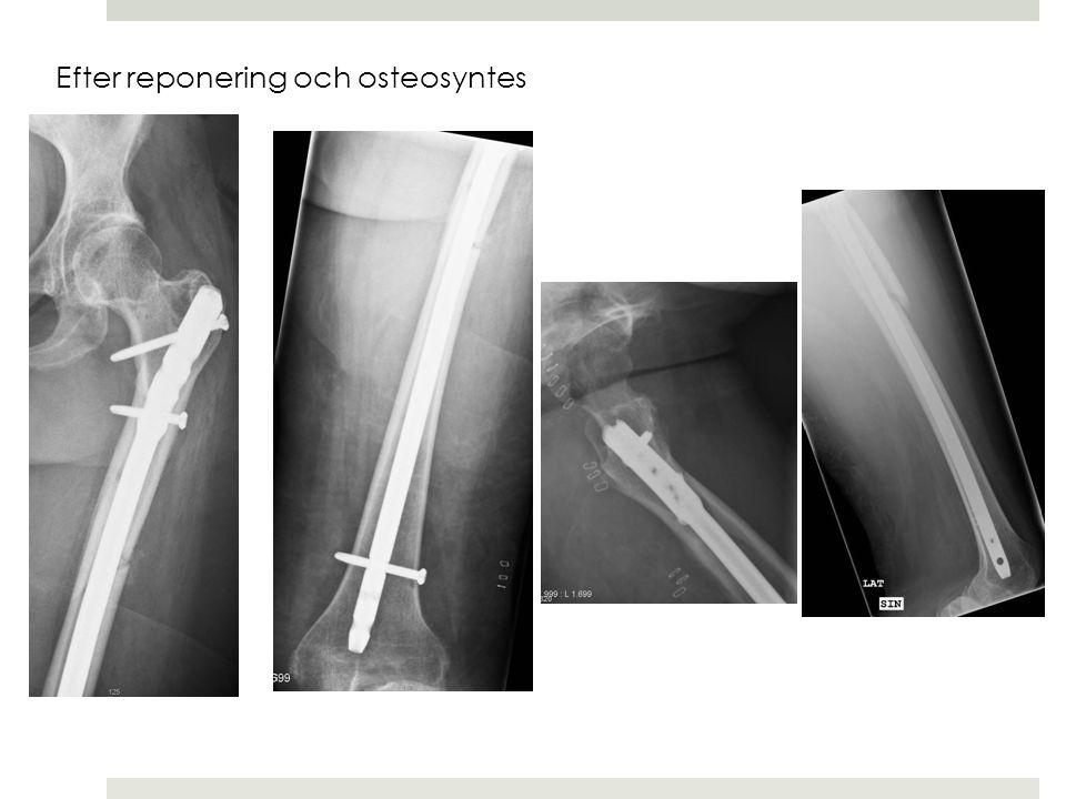 Löpare Osteoporos: insufficiensfraktur Stressfraktur