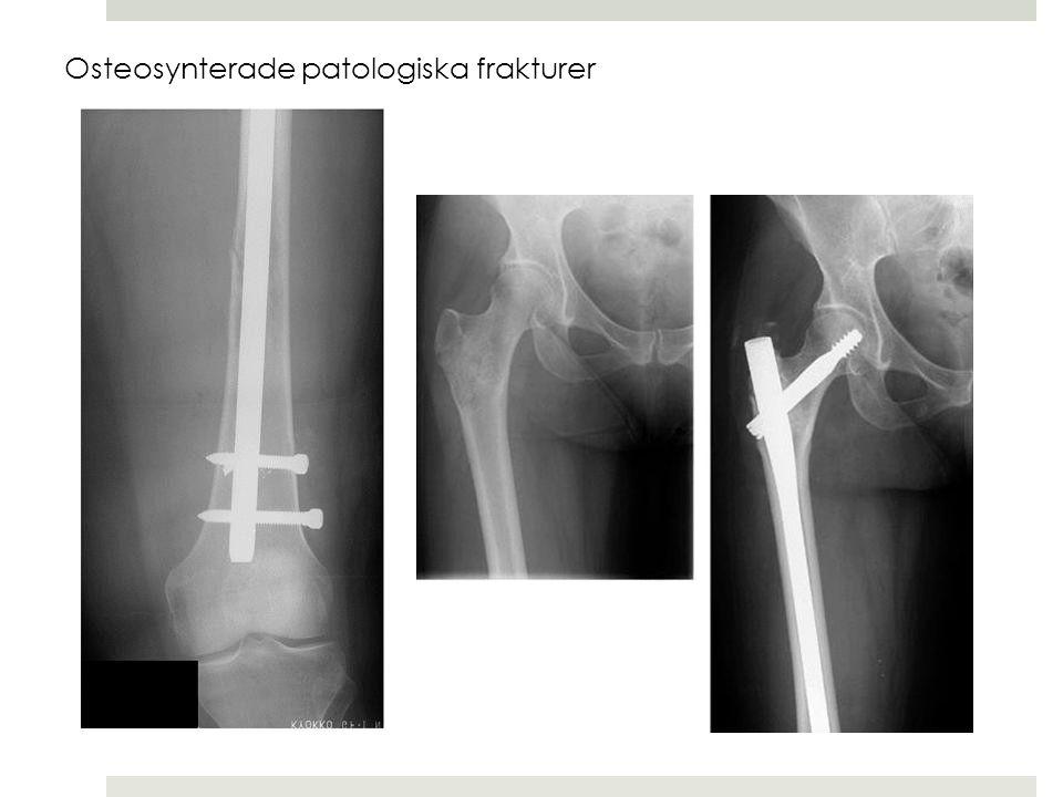  Prox och mellersta 1/3: medialt  Dist 1/3: posteriort  Idrottsutövare  Scleroserat omr /callus Stressfraktur