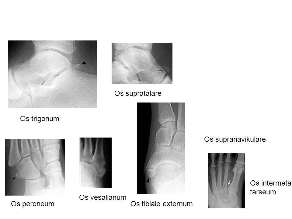Os supranavikulare Os trigonum Os peroneumOs tibiale externum Os supratalare Os vesalianum Os intermeta tarseum