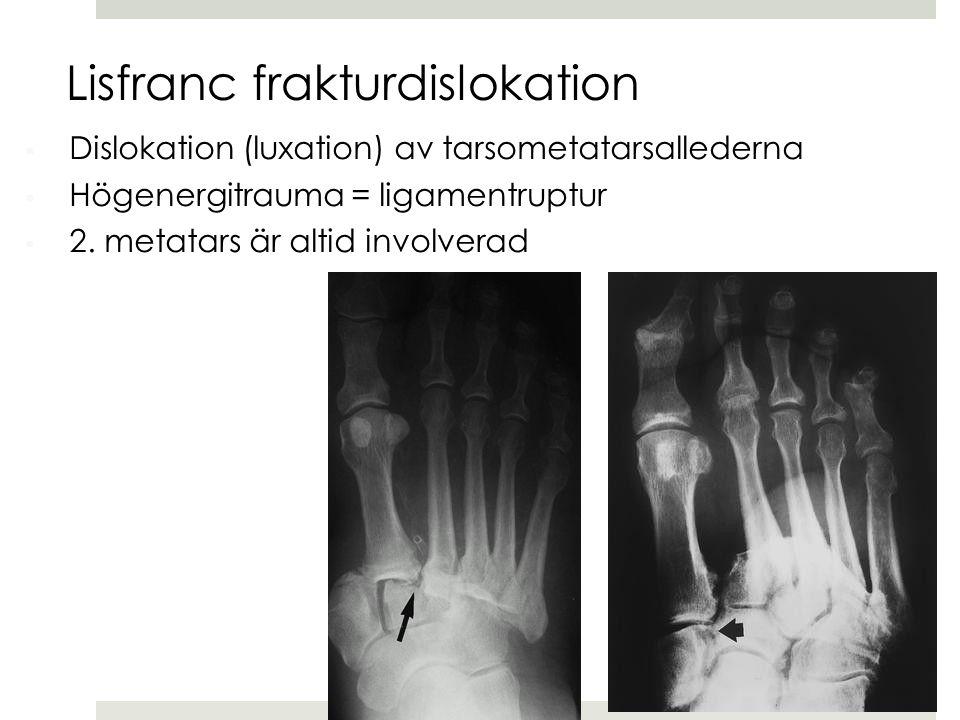  Dislokation (luxation) av tarsometatarsallederna  Högenergitrauma = ligamentruptur  2. metatars är altid involverad Lisfranc frakturdislokation