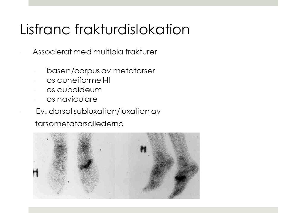  Associerat med multipla frakturer  basen/corpus av metatarser  os cuneiforme I-III  os cuboideum  os naviculare  Ev. dorsal subluxation/luxatio