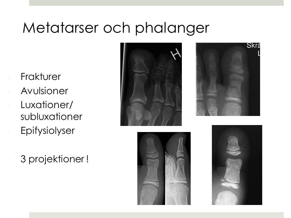  Frakturer  Avulsioner  Luxationer/ subluxationer  Epifysiolyser  3 projektioner ! Metatarser och phalanger