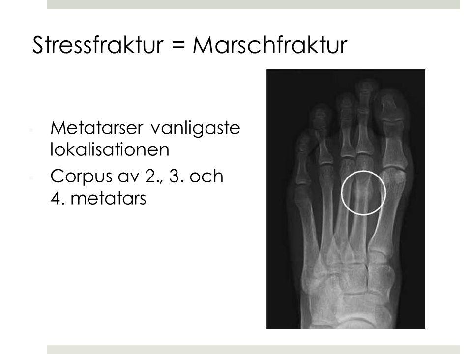  Metatarser vanligaste lokalisationen  Corpus av 2., 3. och 4. metatars Stressfraktur = Marschfraktur