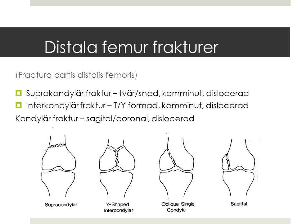 Distala femur frakturer (Fractura partis distalis femoris)  Suprakondylär fraktur – tvär/sned, komminut, dislocerad  Interkondylär fraktur – T/Y formad, komminut, dislocerad Kondylär fraktur – sagital/coronal, dislocerad