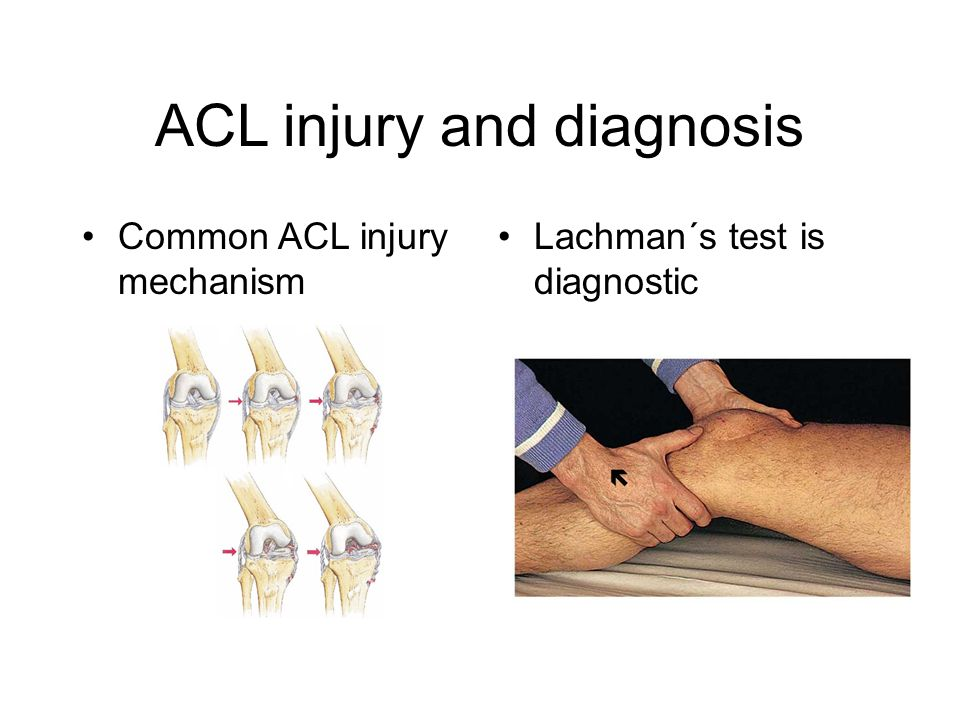 ACL injury and diagnosis Lachman´s test is diagnostic Common ACL injury mechanism