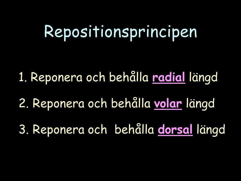 Repositionsprincipen 1. Reponera och behålla radial längd 2.
