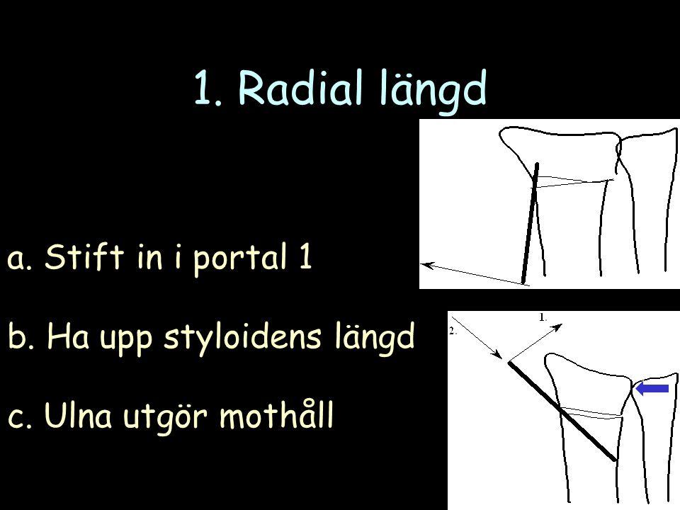 1. Radial längd a. Stift in i portal 1 b. Ha upp styloidens längd c. Ulna utgör mothåll