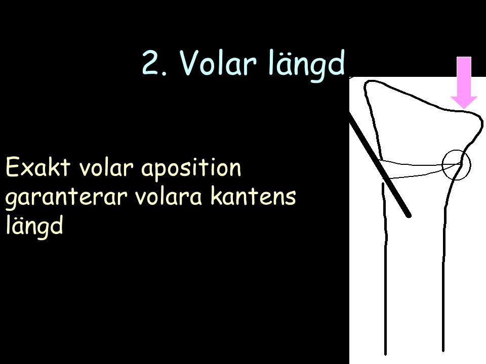 2. Volar längd Exakt volar aposition garanterar volara kantens längd