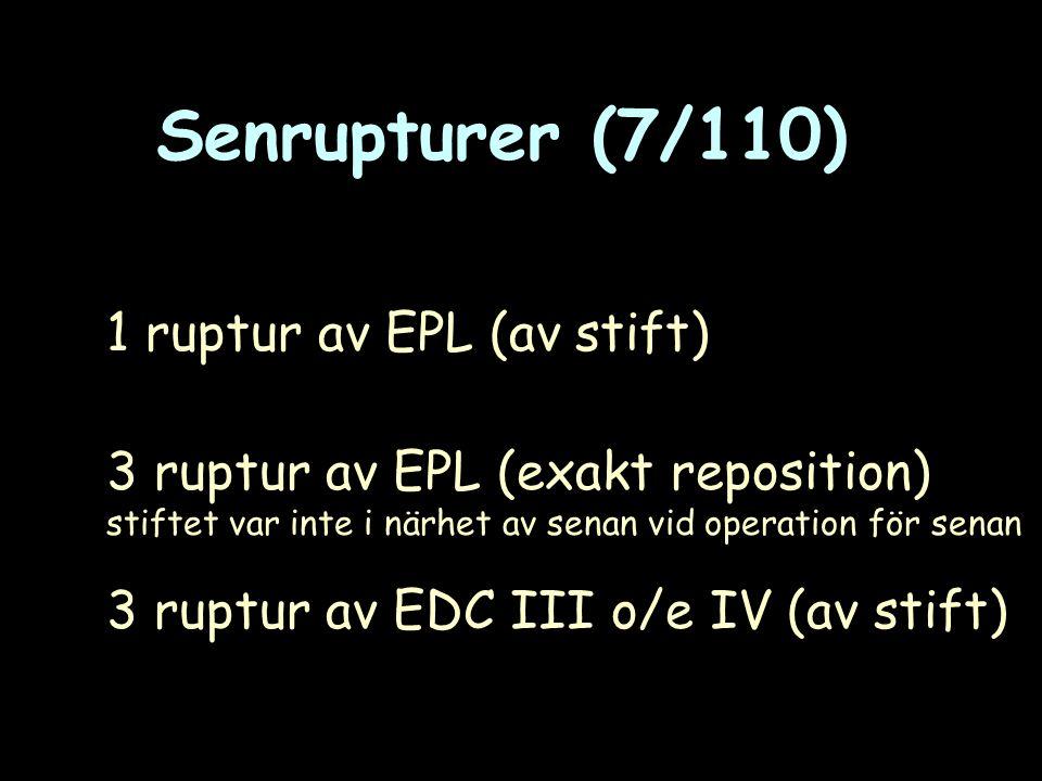 Senrupturer (7/110) 1 ruptur av EPL (av stift) 3 ruptur av EPL (exakt reposition) stiftet var inte i närhet av senan vid operation för senan 3 ruptur av EDC III o/e IV (av stift)