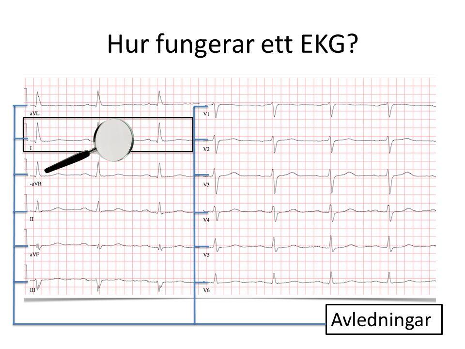 Hur fungerar ett EKG? Avledningar