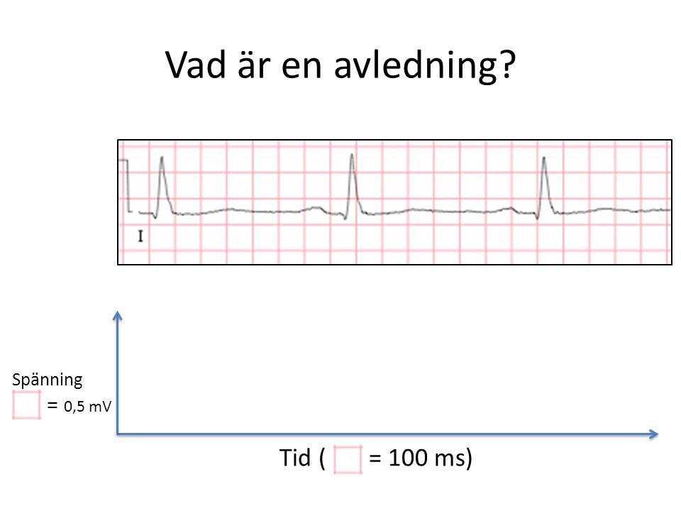 Vad är en avledning? Tid ( = 100 ms) Spänning = 0,5 mV
