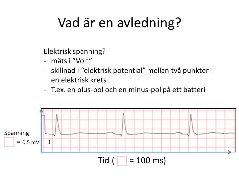 Vad är en avledning. Tid ( = 100 ms) Spänning = 0,5 mV Elektrisk spänning.