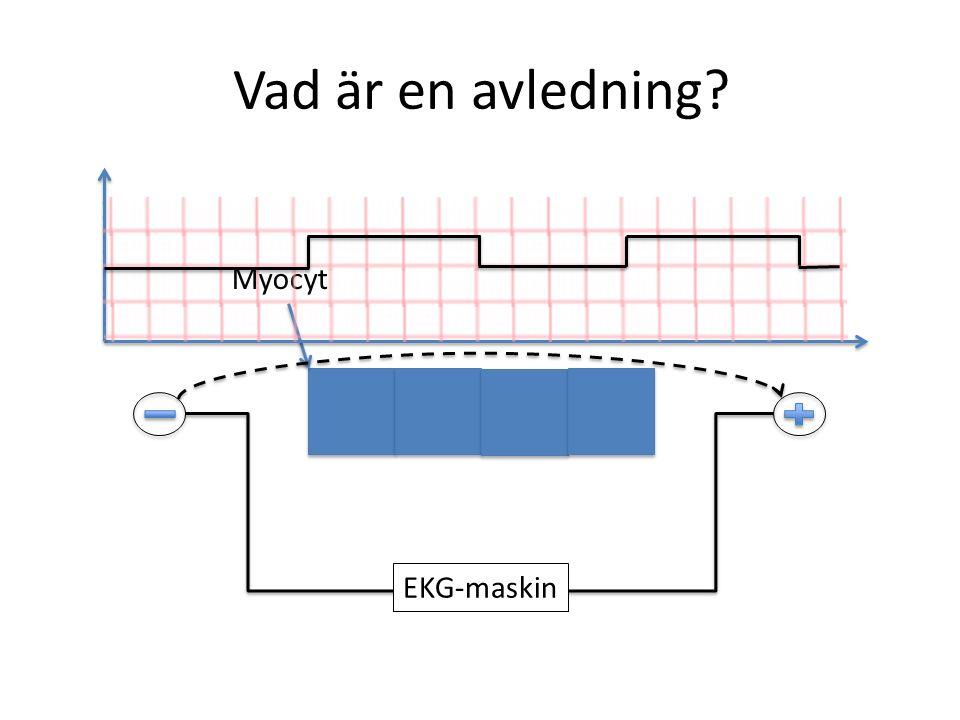 Vad är en avledning? EKG-maskin Myocyt