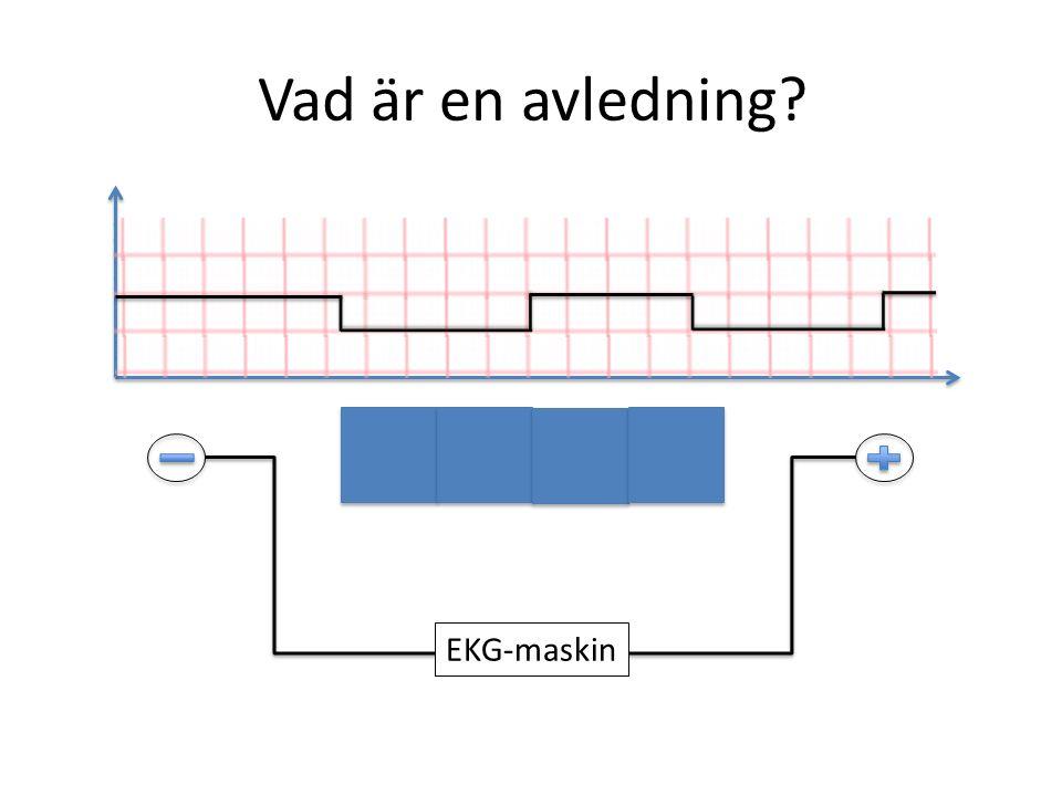 Vad är en avledning? EKG-maskin