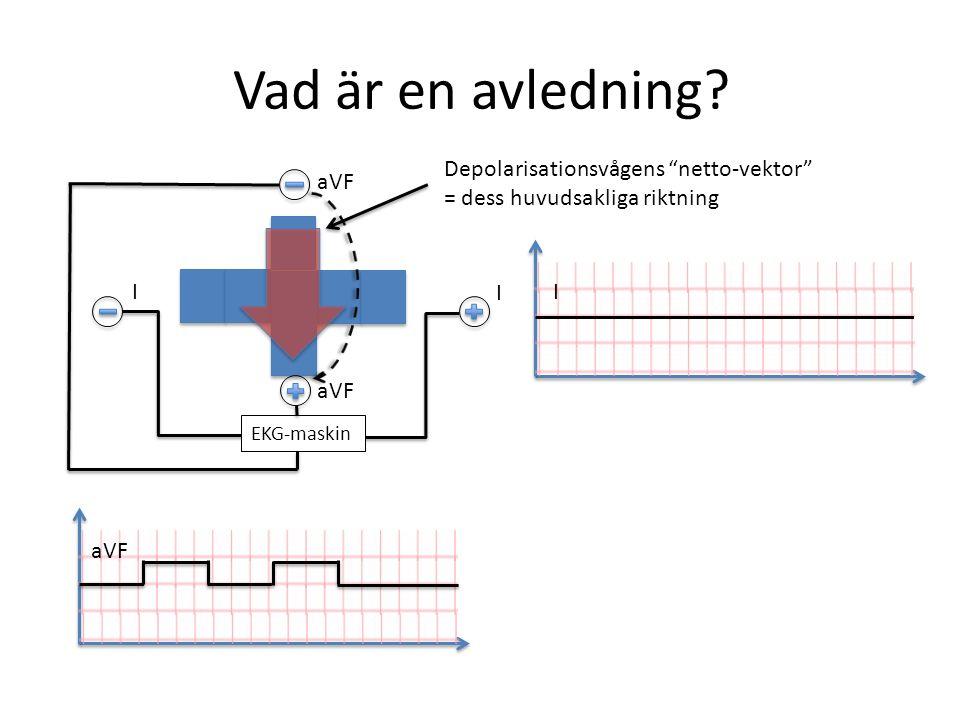 """Vad är en avledning? EKG-maskin I I I aVF Depolarisationsvågens """"netto-vektor"""" = dess huvudsakliga riktning"""