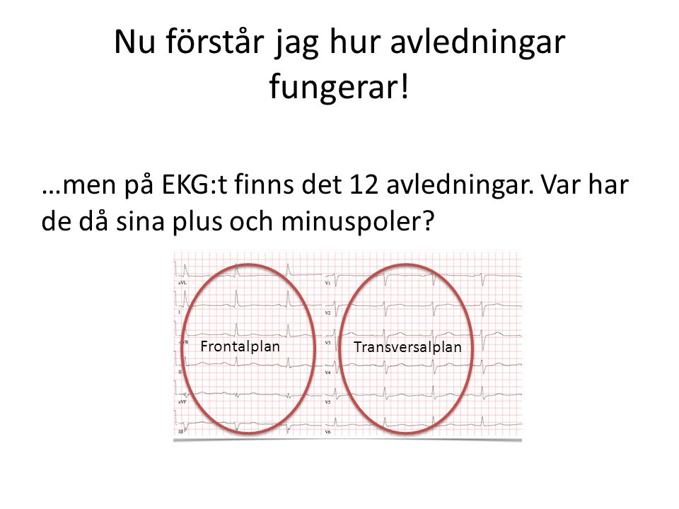 Nu förstår jag hur avledningar fungerar! …men på EKG:t finns det 12 avledningar. Var har de då sina plus och minuspoler? Frontalplan Transversalplan