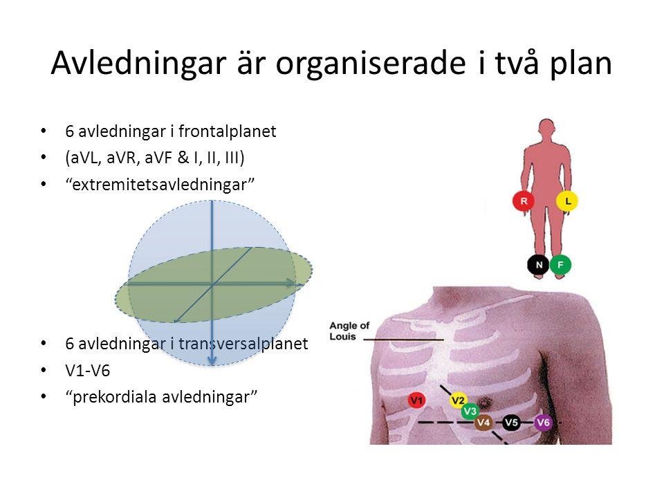 """Avledningar är organiserade i två plan 6 avledningar i frontalplanet (aVL, aVR, aVF & I, II, III) """"extremitetsavledningar"""" 6 avledningar i transversal"""