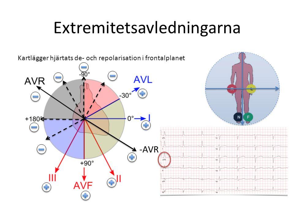 Extremitetsavledningarna Kartlägger hjärtats de- och repolarisation i frontalplanet -AVR