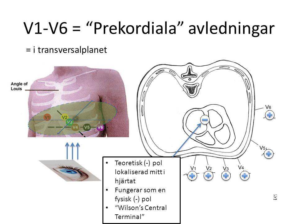 V1-V6 = Prekordiala avledningar Teoretisk (-) pol lokaliserad mitt i hjärtat Fungerar som en fysisk (-) pol Wilson's Central Terminal = i transversalplanet