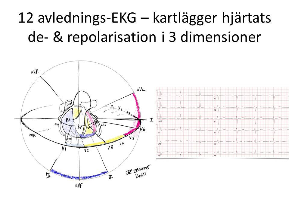 12 avlednings-EKG – kartlägger hjärtats de- & repolarisation i 3 dimensioner