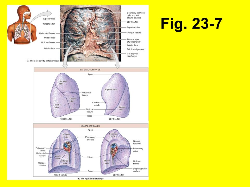 Fig. 23-7