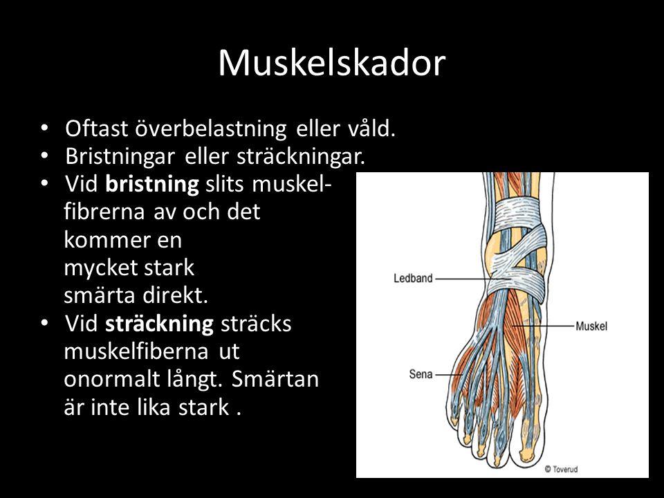 Muskelskador Oftast överbelastning eller våld. Bristningar eller sträckningar.