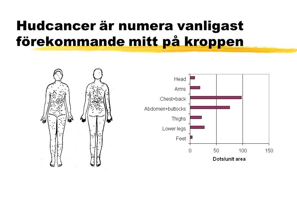 Hudcancer är numera vanligast förekommande mitt på kroppen