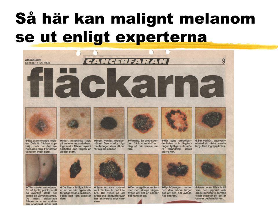 Så här kan malignt melanom se ut enligt experterna