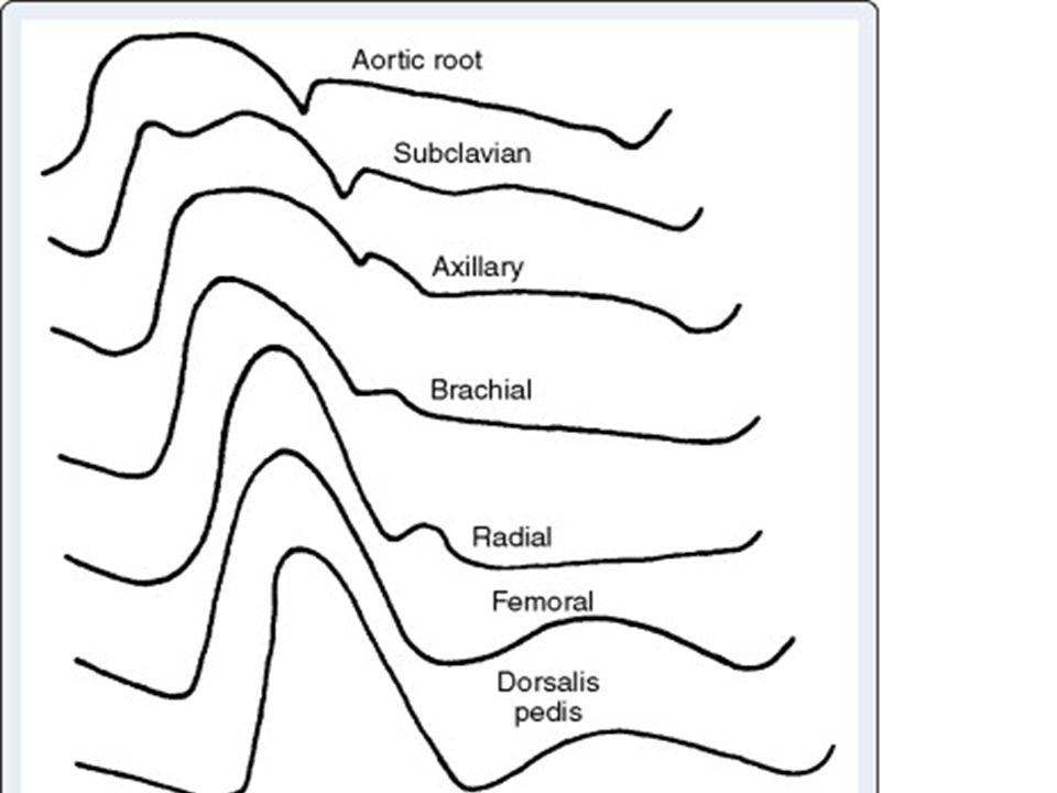 I aortaroten är tryckvågen rundad med tydlig dikrotisk notch.