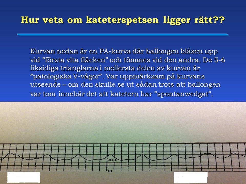 """Heart Centre, University Hospital of Umeå, Sweden Hur veta om kateterspetsen ligger rätt?? Kurvan nedan är en PA-kurva där ballongen blåsen upp vid """"f"""