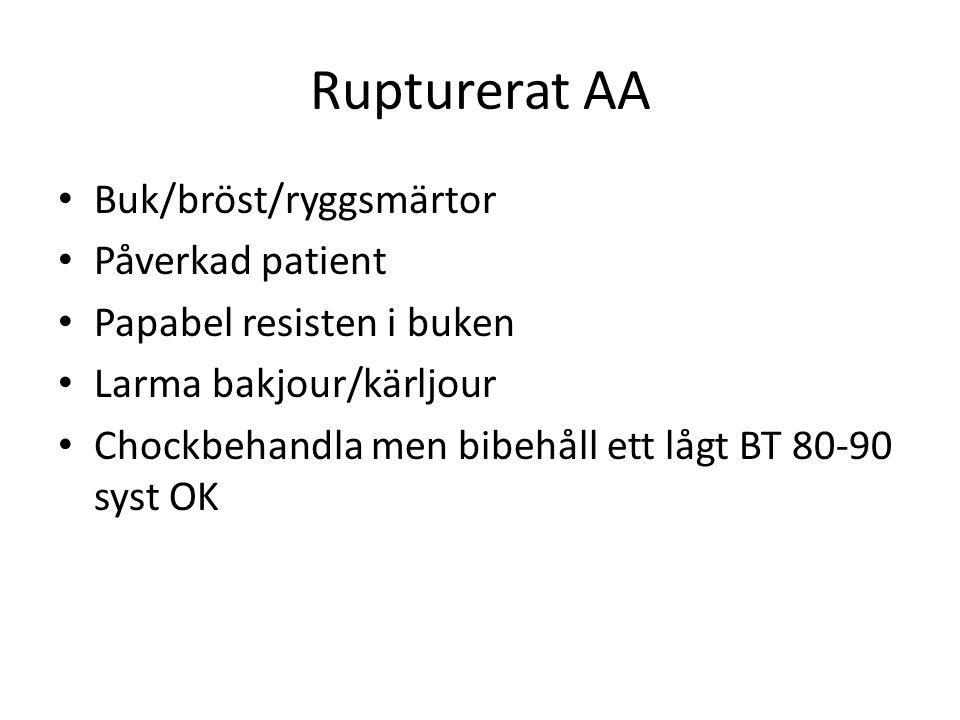 Rupturerat AA • Buk/bröst/ryggsmärtor • Påverkad patient • Papabel resisten i buken • Larma bakjour/kärljour • Chockbehandla men bibehåll ett lågt BT