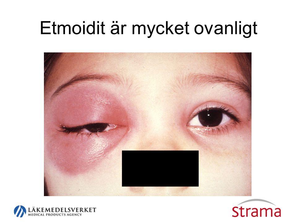 Etmoidit är mycket ovanligt