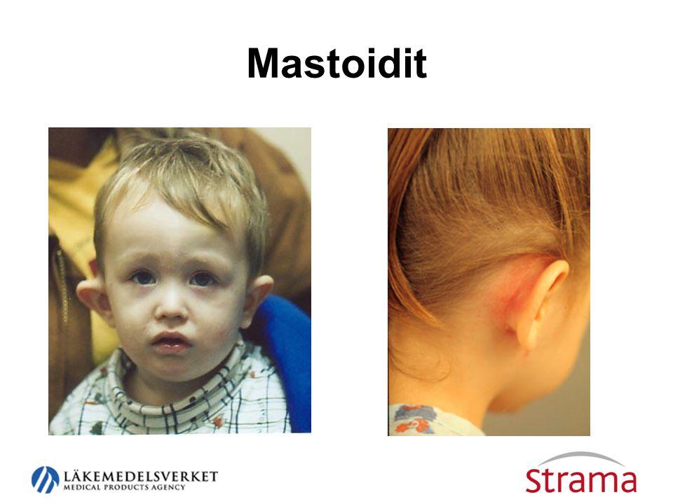 Mastoidit