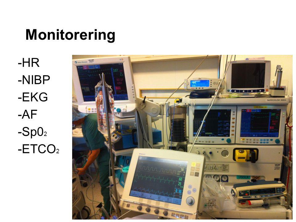 Monitorering -HR -NIBP -EKG -AF -Sp0 2 -ETCO 2
