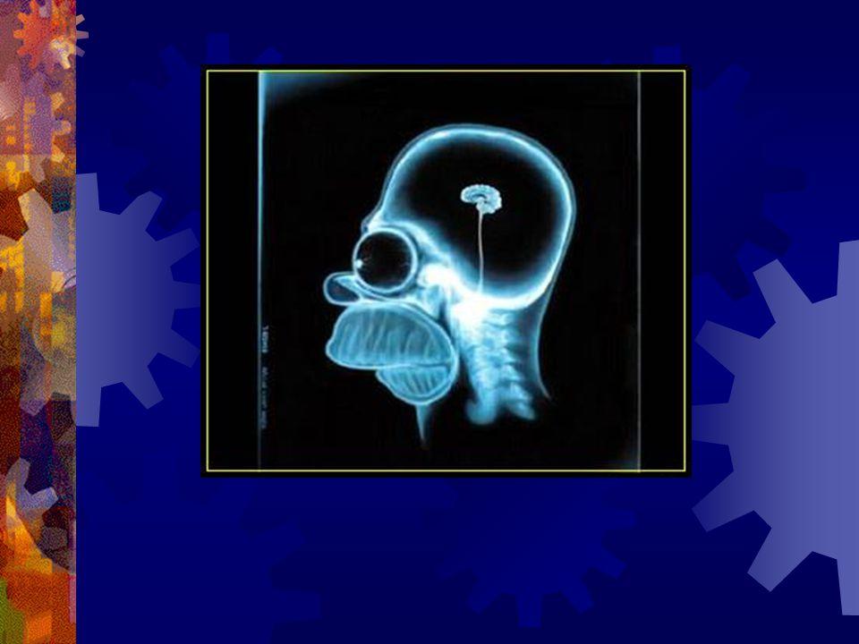 Min chef tyckte att jag var helt unik och skulle åka till psyket och få skallen undersökt…..