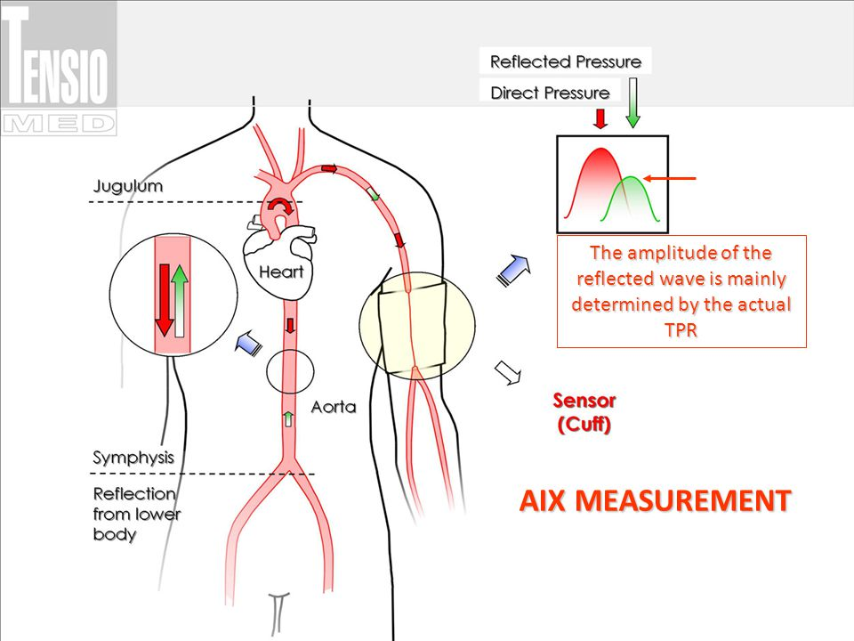 The amplitude of the reflected wave is mainly determined by the actual TPR AIX MEASUREMENT