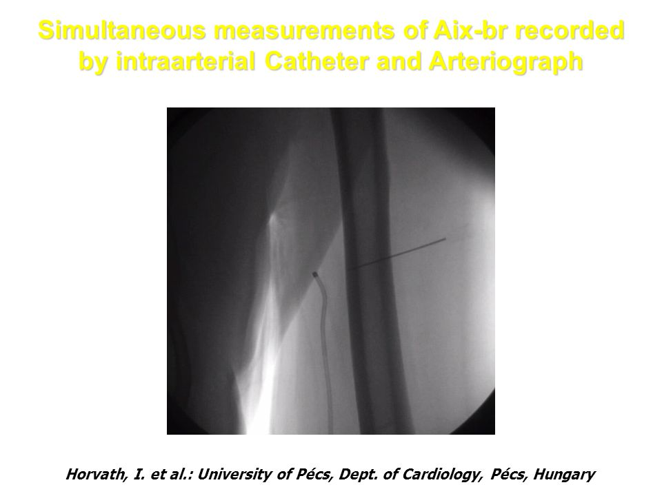 Simultaneous measurements of Aix-br recorded by intraarterial Catheter and Arteriograph Horvath, I. et al.: University of Pécs, Dept. of Cardiology, P