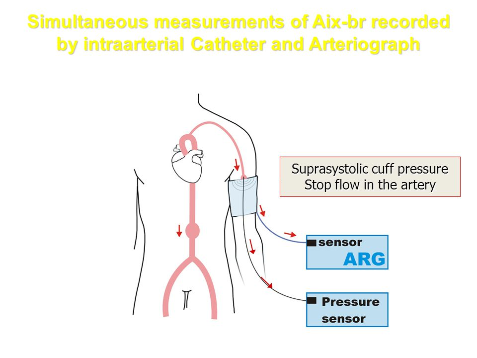 Suprasystolic cuff pressure Stop flow in the artery Simultaneous measurements of Aix-br recorded by intraarterial Catheter and Arteriograph