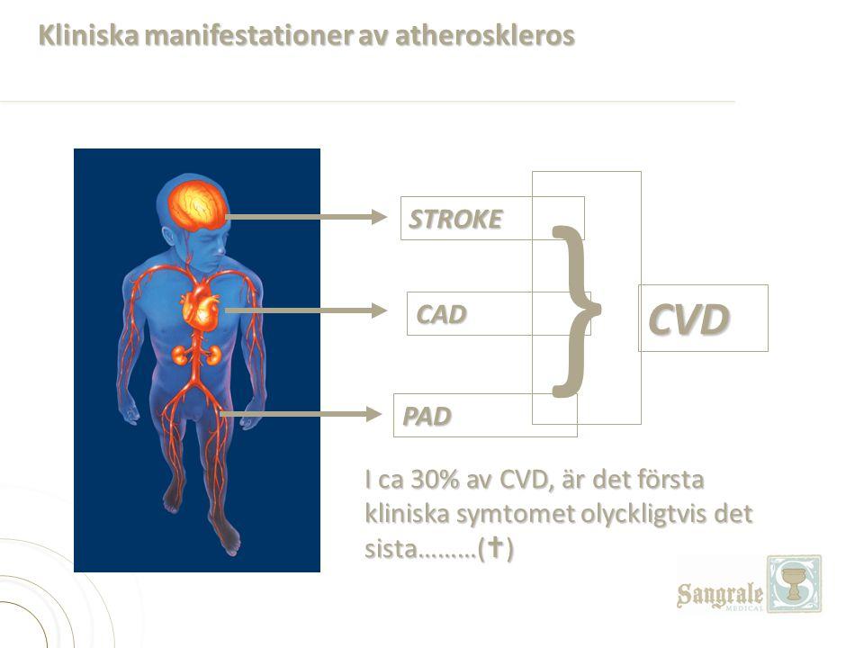 STROKE CAD PAD } CVD I ca 30% av CVD, är det första kliniska symtomet olyckligtvis det sista………(  ) Kliniska manifestationer av atheroskleros