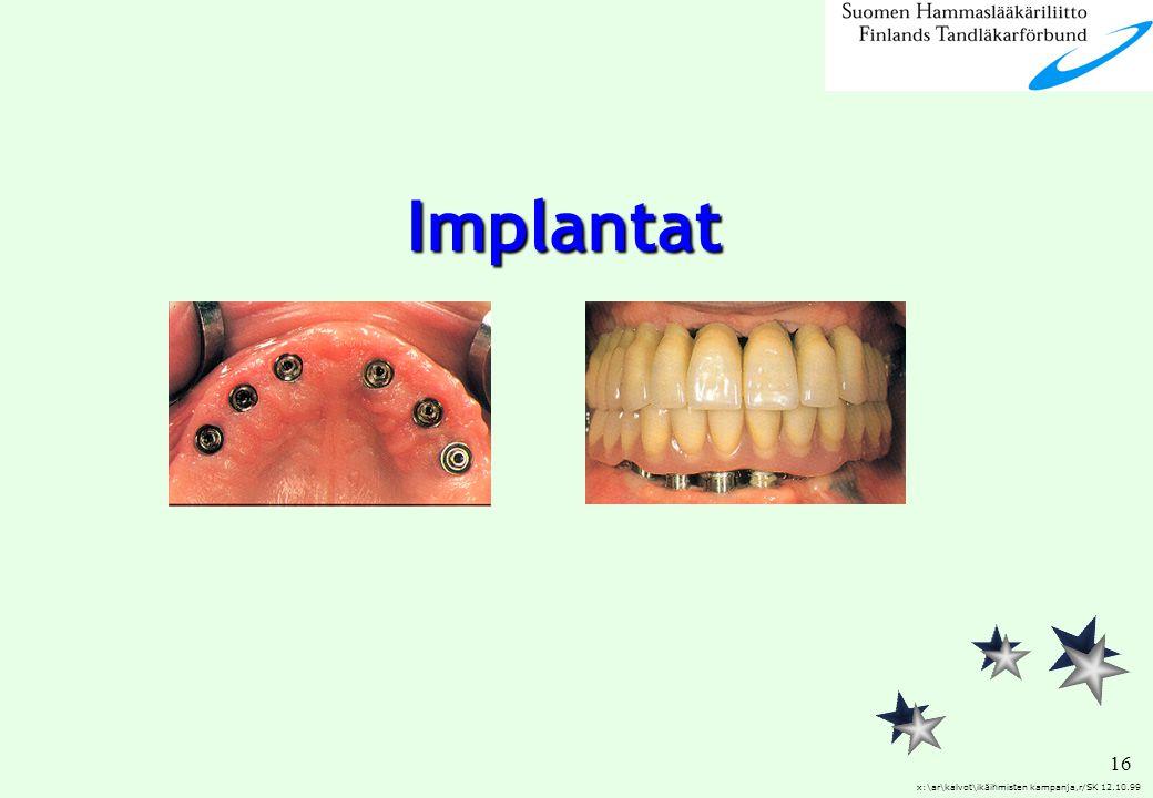 16 x:\ar\kalvot\ikäihmisten kampanja,r/SK 12.10.99 Implantat