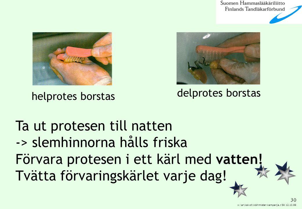 30 x:\ar\kalvot\ikäihmisten kampanja,r/SK 12.10.99 Ta ut protesen till natten -> slemhinnorna hålls friska Förvara protesen i ett kärl med vatten! Tvä