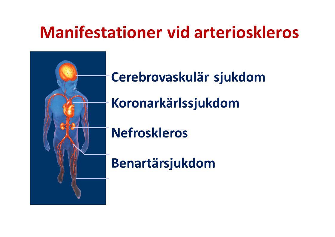Manifestationer vid arterioskleros Cerebrovaskulär sjukdom Koronarkärlssjukdom Nefroskleros Benartärsjukdom