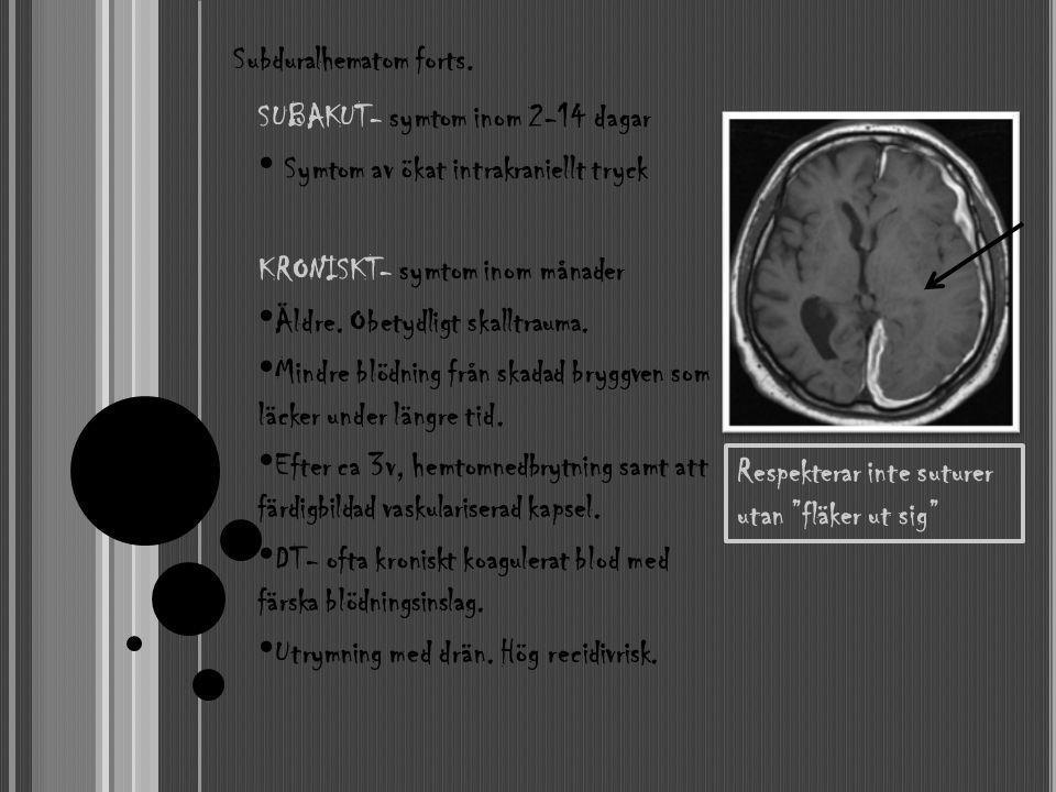 SUBAKUT- symtom inom 2-14 dagar • Symtom av ökat intrakraniellt tryck KRONISKT- symtom inom månader • Äldre. Obetydligt skalltrauma. • Mindre blödning