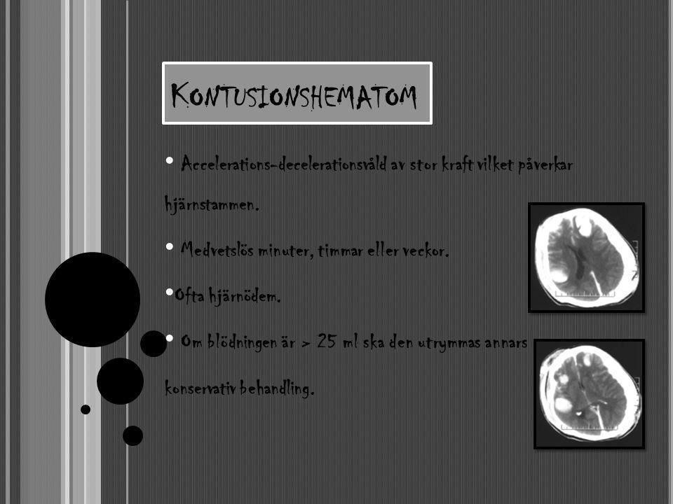 K ONTUSIONSHEMATOM • Accelerations-decelerationsvåld av stor kraft vilket påverkar hjärnstammen. • Medvetslös minuter, timmar eller veckor. • Ofta hjä