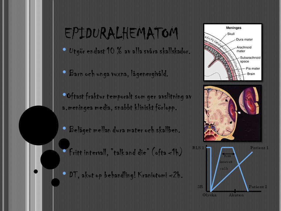 EPIDURALHEMATOM RLS 1 Patient 1 Fritt i ntervall ca1h 3B Patient 2 Olycka Akuten • Utgör endast 10 % av alla svåra skallskador. • Barn och unga vuxna,