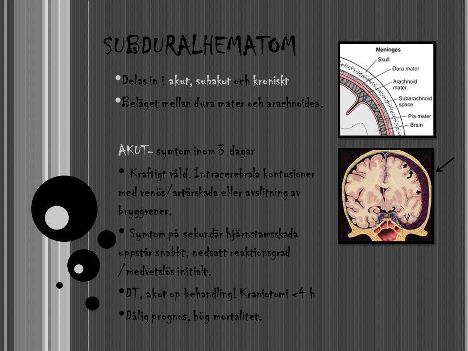 SUBDURALHEMATOM AKUT- symtom inom 3 dagar • Kraftigt våld. Intracerebrala kontusioner med venös/artärskada eller avslitning av bryggvener. • Symtom på