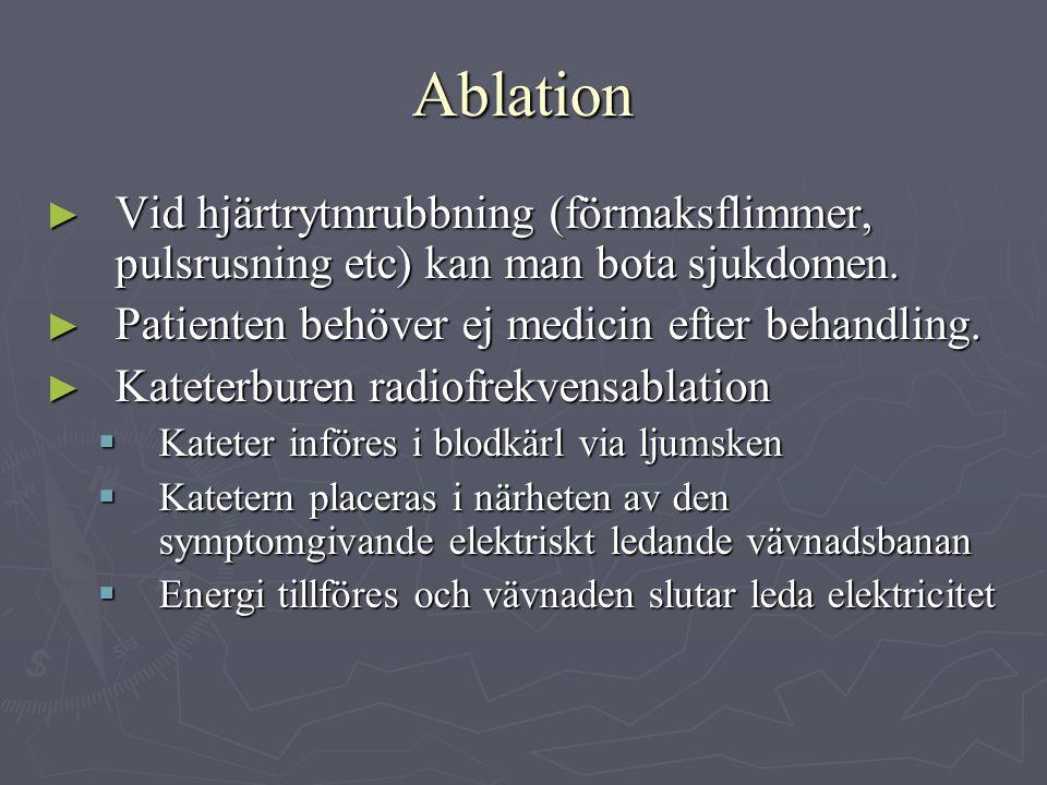 Ablation ► Vid hjärtrytmrubbning (förmaksflimmer, pulsrusning etc) kan man bota sjukdomen. ► Patienten behöver ej medicin efter behandling. ► Kateterb