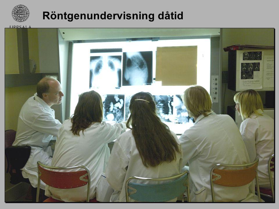 Introduktion (forts) Alla röntgenbilder är nu digitala och ljusskåpen har ersatts av datorer.